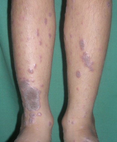 Lichen Planus Ayurvedic Herbal Treatment