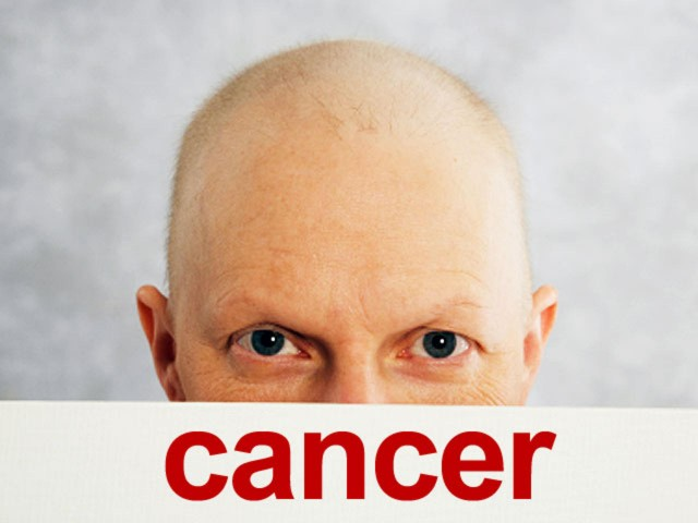 Cancer - Ayurvedic view and treatment options