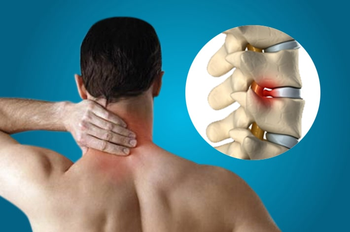 Ayurveda herbal treatment of cervical spondylosis in