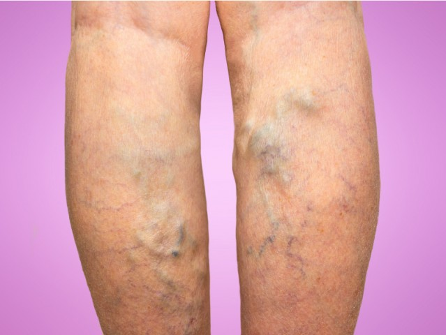 Varicose veins Ayurvedic Herbal Remedies
