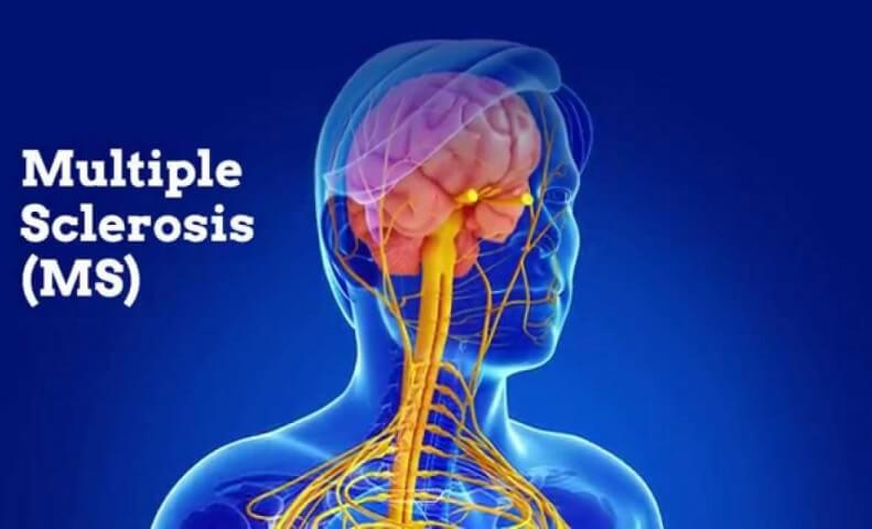 Multiple Sclerosis MS Ayurvedic Herbal Treatment