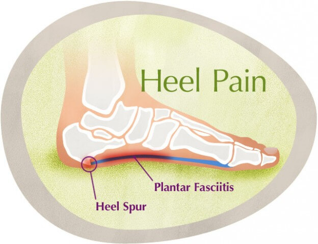 Heel Pain Ayurvedic Herbal Treatment