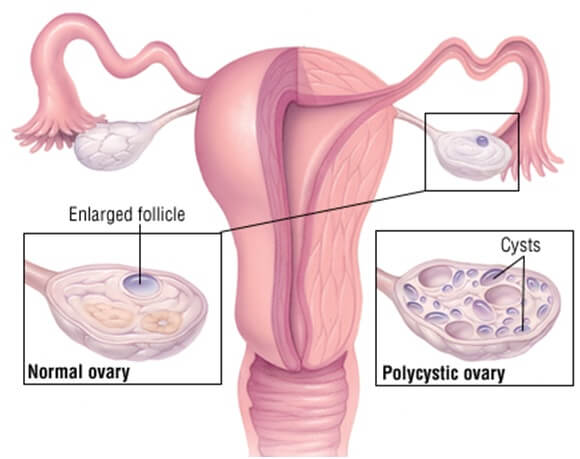 PCOS Polycystic ovarian syndrome Ayurvedic Herbal Treatment