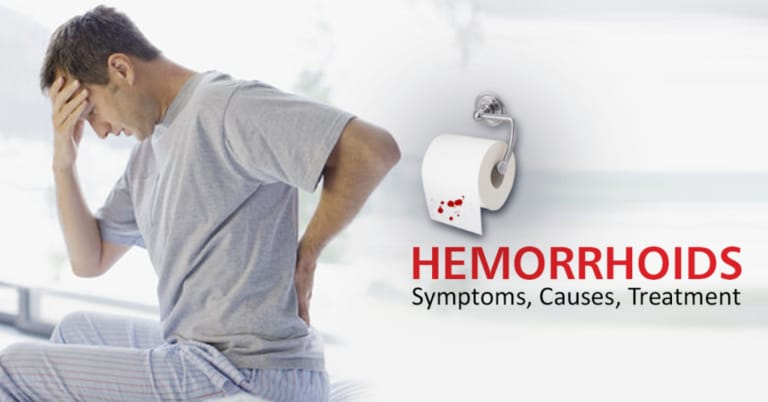 Hemorrhoids  or Piles Ayurvedic Herbal Treatment
