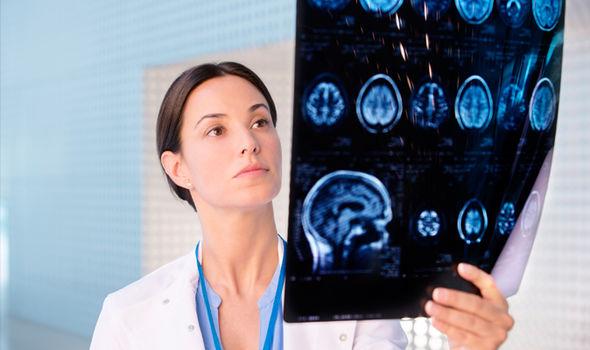 Motor Neuron Disease MND Ayurvedic Herbal Remedies