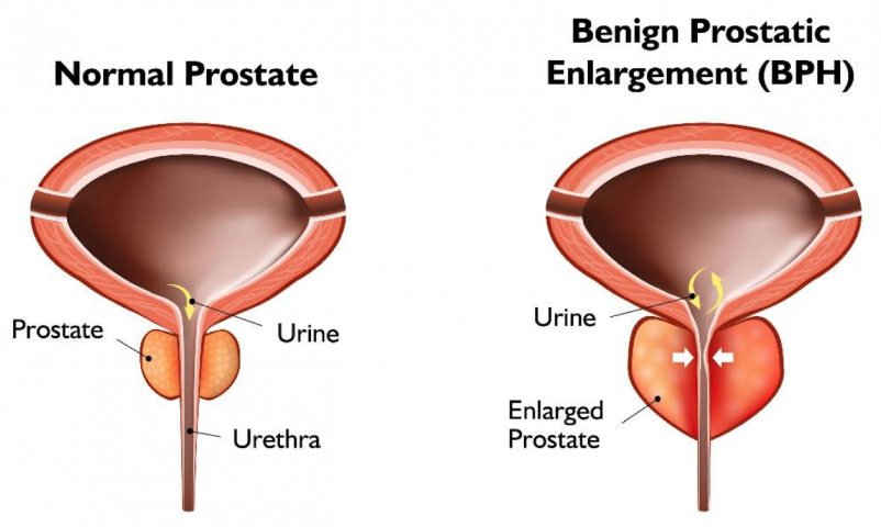 Prostate Enlagement (BPH) Ayurvedic Herbal Treatment