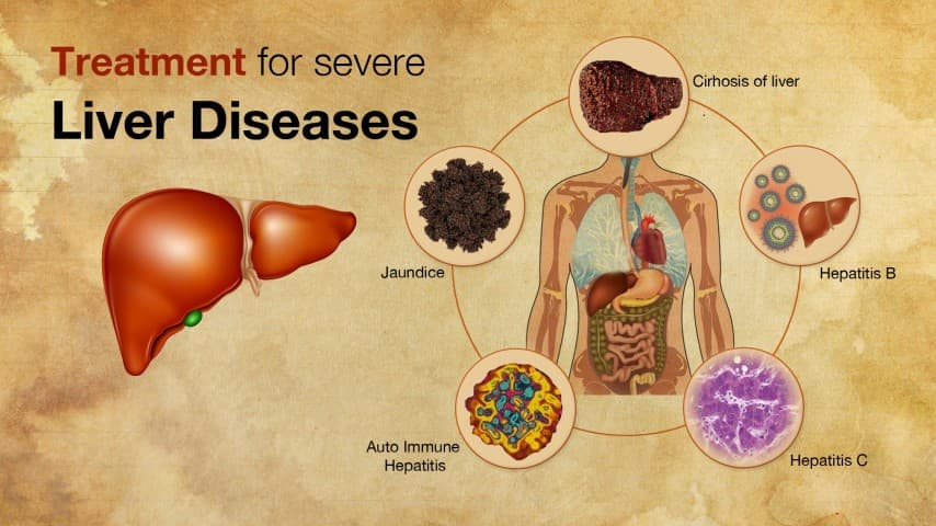 Liver Disorders Ayurvedic Herbal Treatment