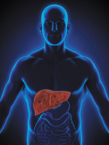 Fatty liver disease Ayurvedic Herbal Treatment